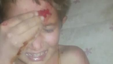 صورة عصابة خطف تنشر شريطًا مصورًا لطفل من بلدة الجيزة وعليه آثار تعذيب (فيديو)